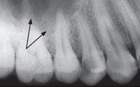 Интраоральная контактная рентгенограмма