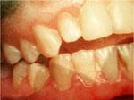 Взаимосвязь между формой зубов